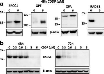 Reduced RAD51 levels in melanoma cells after cisplatin treatment. a Levels of Nucleotide Excision Repair proteins increase after cisplatin treatment of A375 melanoma cells, while levels of RAD51 decrease dramatically. Total protein extracts from untreated A375 human melanoma cells and cells treated with 6 μM cisplatin (CDDP) for 48 h were western blotted for the NER proteins, ERCC1 (33 kDa), XPF (104 kDa) and XPA (40 kDa) and the homologous recombination protein, RAD51 (37 kDa). β-actin (42 kDa) served as the loading control. b Cisplatin concentration- and treatment time-dependent decrease in RAD51 levels in A375 melanoma cells. Total protein extracts from untreated A375 human melanoma cells and cells treated with CDDP concentrations ranging from 0.3 to 6 μM for 48 and 72 h were western blotted for RAD51. β-actin served as the loading control. The positions of molecular weight markers (in kDa) adjacent to proteins of interest are shown