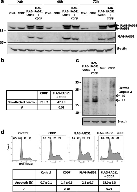 Expression of FLAG-tagged RAD51 adversely affects the response of melanoma cells to cisplatin. a No cisplatin-induced reduction in levels of FLAG-RAD51. Western blots from control A375 cells, cells transfected to express FLAG-RAD51 at levels equivalent to endogenous RAD51 and cells of both types treated with 1 μM cisplatin for 24, 48 or 72 h. The blot was probed sequentially for RAD51 (RAD51 37 kDa, FLAG-RAD51 38.2 kDa), the FLAG tag, and β-actin (42 kDa). b Reduced growth in cisplatin-treated cultures expressing FLAG-RAD51. The table shows the mean cell growth (±SEM, n = 4) of wells after 72 h of 1 μM cisplatin treatment for non-transfected A375 cells expressed as a percentage of the untreated control, and for FLAG-RAD51 transfected A375 cells expressed as a percentage of the non-cisplatin-treated FLAG-RAD51 transfection control. The P value for Student's paired t test, comparing the effect of cisplatin on growth of normal and FLAG-RAD51-expressing cells is also shown. c Increased early apoptosis in cisplatin-treated A375 cultures expressing FLAG-RAD51. Cultures treated as in ( a ) and western blotted for activated caspase-3 and β-actin after 48 h of 1 μM cisplatin treatment. Note the highest levels of cleaved caspase-3 (at 17 and 19 kDa) in the sample transfected with FLAG-RAD51 and treated with cisplatin. d Increased apoptosis in cisplatin-treated A375 cells expressing FLAG-RAD51. Cultures treated as in ( a ) after 72 h of 1 μM cisplatin. A representative flow cytometry profile for each culture condition is shown, with the percentage of cells with subG1 (apoptotic), G1, S and G2/M DNA contents indicated across the top of each profile. Note the highest level of subG1 (apoptotic) material in the cisplatin-treated FLAG-RAD51-expressing cells. The table below shows the mean level of apoptosis (±SEM, n = 4) in wells after 72 h of cisplatin treatment. The P values for Student's paired t test, comparing the level of apoptosis between cisplatin-treated and untreated cont