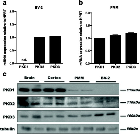 PKD isoform expression in BV-2 cells and PMM. Gene expression of PKD1–3 in a BV-2 and b PMM was analyzed by qPCR and normalized to HPRT. Values are expressed as mean + SD. <t>PKD2</t> expression in BV-2 and PKD1 in PMM was arbitrarily set to 1. n.d. not detectable. c Protein expression of PKD isoforms was determined by western blotting. Samples from the whole brain and cortex were used as controls. One representative blot out of three is shown. β-Tubulin was used as loading control