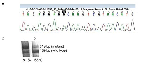 A) Sequencing electropherogram of m.1555A > G mutation. B) Heteroplasmy analysis of m.1555A > G patient and mother was conducted by 35 S-dATP labeled RFLP using Alw26I . The fragment of m.1555A > G mtDNA remains uncut by Alw26I and produces a 319 bp band. The smaller 189 bp digested band is the wild type mtDNA part. 1. Patient 2. Mother.