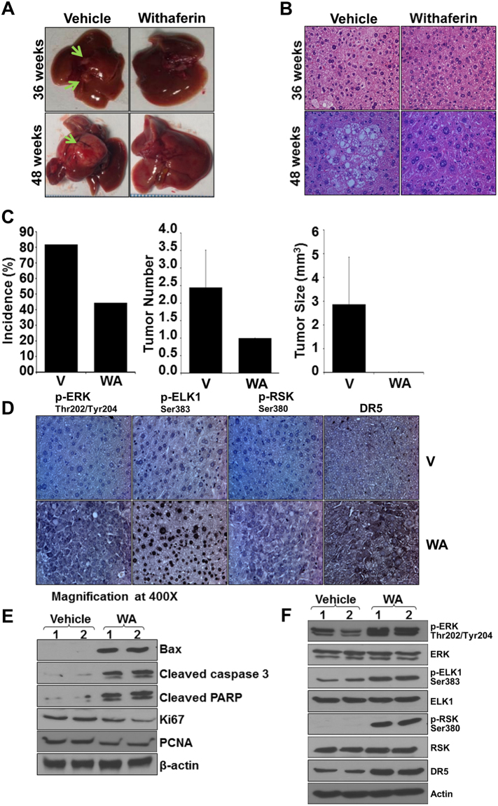 Withaferin A treatment inhibits DEN-induced liver tumor formation in C57BL/6 mice. C57BL/6 mice were given intraperitoneal injection of DEN (25 mg/kg/body weight) to develop liver tumors. Tumor bearing mice were randomized to vehicle or WA treatment groups and oral administration of vehicle or WA continued for 36 or 48 hours. ( A ) Representative pictures showing macroscopic changes in the liver from DEN-C57BL6 mice treated with vehicle or WA for 36 and 48 weeks. Arrows point to tumors in untreated group. ( B ) Representative images of H E staining of liver tumors from vehicle and WA treated groups. ( C ) Bar diagram for (i) tumor incidence, (ii) tumor multiplicity and (iii) tumor size for vehicle-treated and WA-treated DEN-C57BL6 mice (n = 8 mice/group). ( D ) Tumors were subjected to immunohistochemical analysis using pERK, pELK1, pRSK, and DR5 antibodies. Columns, mean (n = 8). ( E ) Tumor lysates were immunoblotted for Bax, cleaved Caspase 3, cleaved PARP, PCNA and Ki67 as indicated. ( F ) Tumor lysates were subjected to immunoblot analyses using phosphorylated and total ERK, ELK1, RSK and DR5 as indicated. β actin was used as loading control.