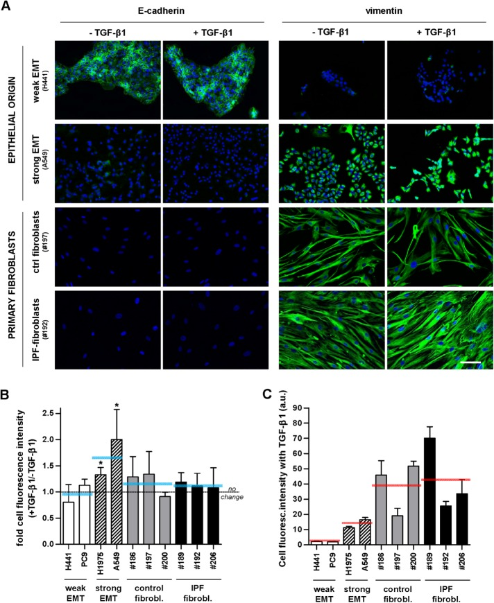 Immunofluorescence analysis of epithelial (E-cadherin) and mesenchymal (vimentin) markers in EMT-competent lung epithelial cells and primary lung fibroblasts. (A) Representative immunofluorescence images of E-cadherin (left) and vimentin (right) in epithelial cell lines (H441, A549) and primary fibroblasts obtained from randomly selected control (fibrosis-free) or IPF patients (referred by the three-digit number following # symbol) cultured for 3 d in the absence or presence of 5 ng/ml TGF-β1. Images were obtained with a ×20 objective (seven images/condition). Blue indicates DAPI staining here and thereafter. Scale bar here, 50 μm. Representative images from other epithelial cell lines (PC9, H1975) and patients are shown in Supplemental Figure S1. (B) Ratio of the average vimentin fluorescence intensity per cell obtained in the presence or absence of TGF-β1 in a panel of epithelial cell lines and primary fibroblasts from randomly selected control and IPF patients. Horizontal gray dashed line corresponds to no fold change (ratio = 1), whereas horizontal solid blue lines correspond to the average values for each cellular model (i.e., epithelial cells exhibiting weak or strong EMT, n = 2; and primary fibroblasts from control or IPF patients, n = 3). (C) Absolute average vimentin fluorescence intensity per cell obtained on stimulation with TGF-β1 in the same cell models shown in B. * p ≤ 0.05 with respect to 1 were determined by Student's t test (here and hereafter).