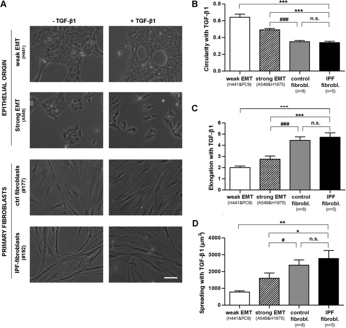 Morphometric analysis of EMT-competent lung epithelial cells and primary lung fibroblasts stimulated with the profibrotic cytokine TGF-β1 for 3 d. (A) Representative phase contrast images of epithelial cells (H441, A549) and primary fibroblasts obtained from randomly selected control or IPF patients in the absence or presence of TGF-β1. Images were obtained with a ×20 objective (two to three images/condition). Scale bar, 50 μm. Representative images from other epithelial cell lines (PC9, H1975) and patients are shown in Supplemental Figure S3. (B–D) Average cell values of the circularity (B), elongation (C), and spreading (D) assessed on stimulation with TGF-β1 in epithelial cells undergoing weak or strong EMT and in primary fibroblasts from control or IPF patients. On average, 30 cells were analyzed per experimental condition. * p ≤ 0.05, ** p ≤ 0.01, and *** p ≤ 0.005 with respect to IPF fibroblasts; # p ≤ 0.05, ## p ≤ 0.01, and ### p ≤ 0.005 with respect to control fibroblasts. All comparisons were determined by Student's t test.