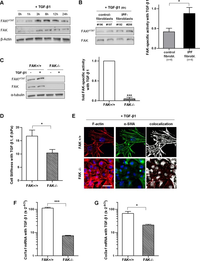 Analysis of FAK Y397 activity in primary fibroblasts on TGF-β1 stimulation, and effect of loss of FAK activity in the stiffness, cytoskeletal organization, and collagen expression of fibroblasts. (A) Representative Western blot showing the time-course expression of FAK Y397 , total FAK, and β-actin in primary control fibroblasts stimulated with TGF-β1. (B) Representative Western blot showing FAK pY397 and total FAK of control fibroblasts and IPF fibroblasts stimulated with TGF-β1 for 6 h; right: corresponding densitometry analysis of FAK pY397 /FAK in control ( n = 4) and IPF fibroblasts ( n = 4). (C) Representative Western blot showing FAK pY397 , total FAK and α-tubulin of FAK wild-type (FAK +/+ ), or FAK null (FAK –/– ) mouse embryonic fibroblasts stimulated with TGF-β1 for 6 h; right: corresponding densitometry analysis of FAK pY397 /α-tubulin ( n = 3). (D) E of FAK +/+ and FAK –/– fibroblasts stimulated with TGF-β1 for 3 d assessed by AFM as in Figure 5 . (E) Selected regions from representative immunofluorescence images of F-actin (left), α-SMA (middle), and their corresponding colocalization (right) of FAK +/+ and FAK –/– fibroblasts stimulated with TGF-β1 for 3 d. Images were obtained as in Figure 3 . Scale bar, 50 μm. (F, G) mRNA levels of Col1a1 (F) and Col3a1 (G) of FAK +/+ and FAK –/– fibroblasts stimulated with TGF-β1 for 3 d assessed as in Figure 6 . Statistical analysis as in Figure 2 ( n = 2, unless otherwise indicated).