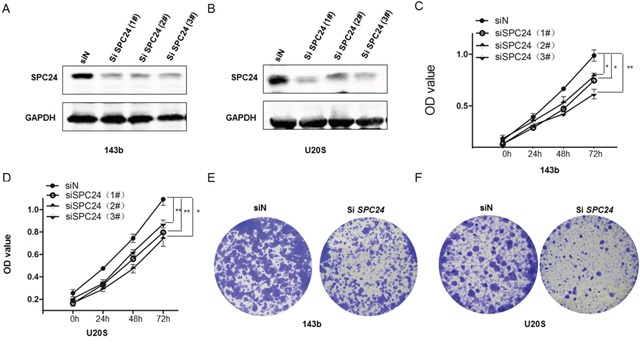 SPC24 knockdown decreases growth, viability and colony formation in 143B and U2OS cells (A-B) Representative western blot images showing SPC24 expression in siSPC24 and siN transfected (A) 143B and (B) U2OS cells. β-actin is the loading control. (C-D) MTT assay showing viability of siSPC24 and siN transfected (C) 143B and (D) U2OS cells at 24, 48 and 72 h. (E-F) Soft-agar colony formation assay showing crystal violet stained colonies from siSPC24 and siN transfected (E) 143B and (F) U2OS cells. Note: * denotes p
