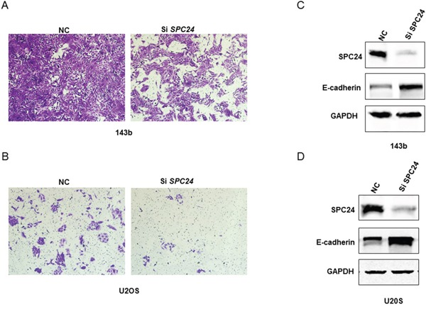 SPC24 knockdown increases invasiveness and EMT in 143B and U2OS cells (A-B) Representative images (250X) showing transwell invasion assay results of siN or siSPC24 transfected 143B and U2OS cells. (C-D) Representative western blots showing E-cadherin and SPC24 levels in siN or siSPC24 transfected 143B and U2OS cells at 72 h.