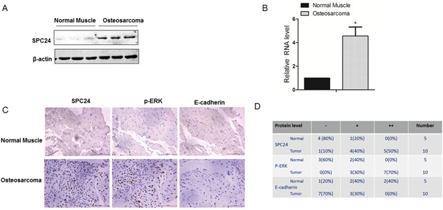 Human osteosarcoma patient tissues show increased SPC24 and p-ERK and decreased E-cadherin levels (A) Representative western blot shows SPC24 levels in normal and OS patient tissue samples. B-actin was used as control. (B) QRT-PCR analysis of SPC24 mRNA levels in normal and OS patient tissue samples. (C) Representative images (magnification: 20x) show immunohistochemical staining of SPC24, p-ERK and E-cadherin in normal and OS tissue samples (Scale bar, 125μm). (D) Semiquantitative analysis of SPC24, p-ERK and E-cadherin expression in normal and OS cancer tissue samples based on immunohistochemical staining.