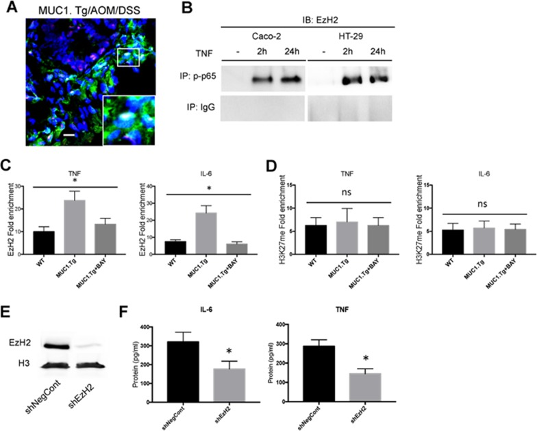 EzH2 regulates inflammatory cytokines expression in MUC1+ IECs from AOM/DSS-treated mice (A) Confocal immunofluorescence microscopy of frozen colon tissue samples, fixed and stained with anti-NF-κB p65 (red) or EzH2 (green) antibodies. Bar: 100 μm. (B) Co-Immunoprecipitation Assay. NF-kB, p65 immunoprecipitated nuclear proteins from indicated cells were immunoblotted with anti-EzH2 antibody. (C-D) ChIP assay: soluble chromatin was immunoprecipitated with indicated antibodies and analyzed for κB consensus sites of IL-6 and TNF-α promoters. Quantification of binding was represented as fold-enrichment relative to IgG. (E) Western blotting of whole cell lysates of IECs transfected with an shRNA targeting EzH2 (shEzH2) or a target control (shNegCont), as described in Material and Methods, with anti-EzH2 antibody. Actin was used as loading control. (F) Indicated cytokine production by IECs transfected with shEzH2 RNA or target control (shNegCont). N=6 per group. Statistical analysis was carried out with one-way ANOVA, * indicates P