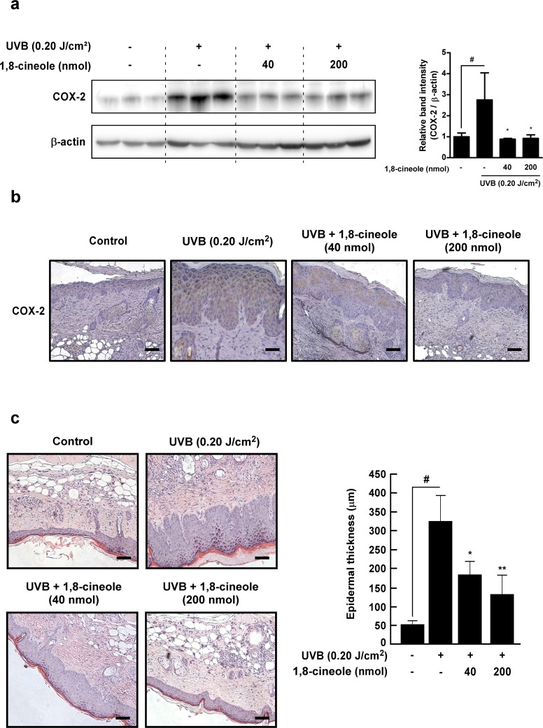Effect of 1,8-cineole on UVB-induced COX-2 expression and epidermal hyperplasia in SKH-1 hairless mouse skin (a) and (b) 1,8-cineole inhibits UVB-induced COX-2 expression in SKH-1 mouse skin. Expression levels of proteins were detected by Western blotting. Each band was densitometrically quantified by image analysis. The band density of COX-2 was normalized to β-actin followed by statistical analysis. Quantification data are represented as means ± SD (n = 3). Immunohistochemical analysis shows representative photographs of overall staining patterns from each group. The expression level of COX-2 proteins was stained as brown and the nucleus was counterstained as blue. Scale bar, 20 μm. (c) 1,8-cineole inhibis UVB-induced epidermal hyperplasia in SKH-1 mouse skin. Hematoxylin- and eosin-staining shows representative photographs of overall staining patterns from each group. Scale bar, 20 μm. Bars graph represent epidermal thickness (μm) of the indicated groups. Hash symbol ( # ) indicates a significant difference between the control and the UVB-treated group (p