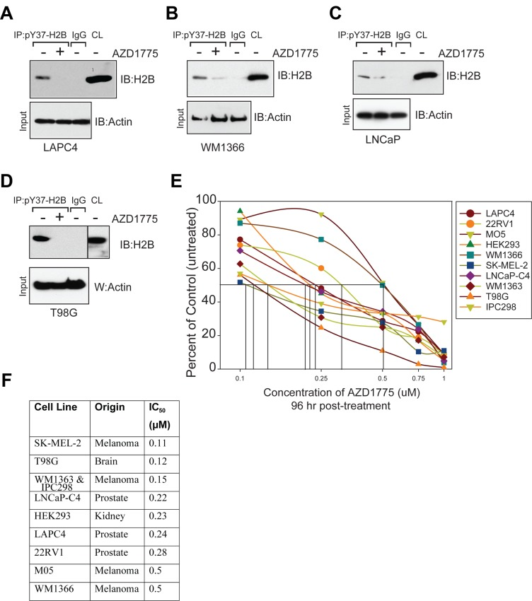 WEE1 inhibition suppresses pY37-H2B expression ( A – D ) Prostate cancer (LAPC4 and LNCaP), melanoma (WM1366) and brain cancer (T98G) derived cells were treated with AZD1775 (2 µM, 24 hr) and lysates were immunoprecipitated with pY37-H2B antibodies, followed by immunoblotting with pan-H2B antibodies (top panels). CL indicates the crude lysates. Lower panel indicates immunoblotting of lysates with actin antibodies. ( E ) Cell viability assay. Melanoma, prostate and brain cancer cell lines were treated with AZD1775 for 96 hr and live/dead population was assessed by Trypan blue staining. Data represent mean ± standard error of the mean or s.e.m. ( n = 3). ( F ) Table indicates IC 50 values based on cell proliferation analysis in AZD1775 treated cells in comparison to untreated cells shown in Figure 1E .