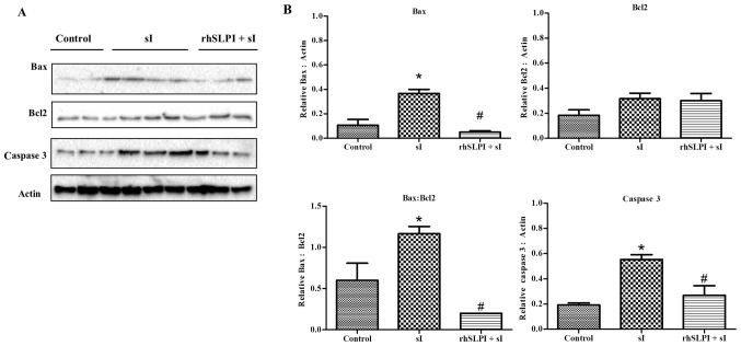 (A) Effects of rhSLPI on the activation of apoptotic regulatory proteins. HUVECs were subjected to control medium incubation, 20-min sI, or 1,000 ng/ml rhSLPI prior to ischaemia. Endothelial cell proteins were prepared for western blot analysis to detect the expression levels of Bax, Bcl-2 and cleaved caspase 3. (B) Quantified levels of Bax, Bcl-2, Bax: Bcl-2 ratio and cleaved caspase 3 were detected in 3–6 experiments with independent cell preparations. *P