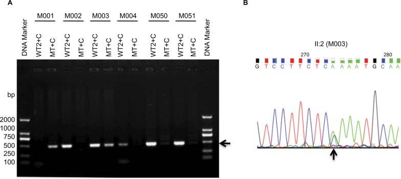 ARMS amplification by primers CHM-WT2 (WT2) and CHM-Common, and primers CHM-MT and CHM-Common. Notes: ( A ) ARMS amplification for different DNA samples. The black arrow shows the specific PCR products. ( B ) Verification of M003 by Sanger sequencing. The black arrow shows the position of the point mutation. I:1=M001; II:3=M002; II:2=M003; III:1=M004; II:1=M050; M051=Normal male control. Abbreviations: ARMS, amplification refractory mutation system; CHM, choroideremia; WT, wild-type primer; MT, mutant primer; C, common primer.