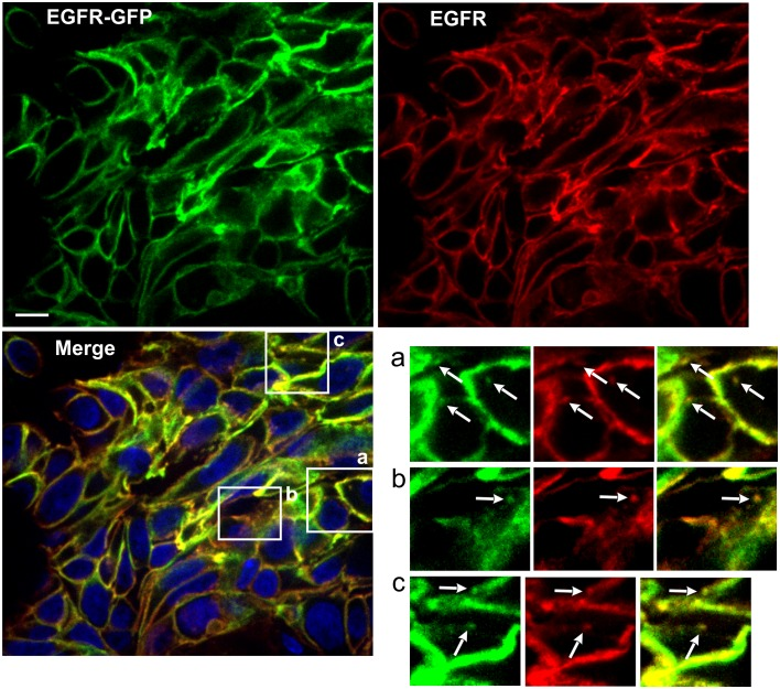 Immunofluorescence labeling of EGFR in HSC3/EGFR-GFP tumor flank xenografts. Athymic nude mice harboring HSC3/EGFR-GFP xenograft tumors were dissected, fixed in paraformaldehyde and permeabilized with Triton X-100. Cryosections were labeled with Mab528 followed by secondary Cy3-conjugated antibodies (red). Nuclei were stained with Hoescht. Confocal imaging was performed through 488 nm (GFP, green), 561 nm (Cy3, red) and 405 nm (Hoescht, blue). Scale bar, 10 µm. Insets show high-magnification images of regions indicated by white rectangles. Arrows point on examples of Mab528 and GFP co-localization in clusters and vesicles.