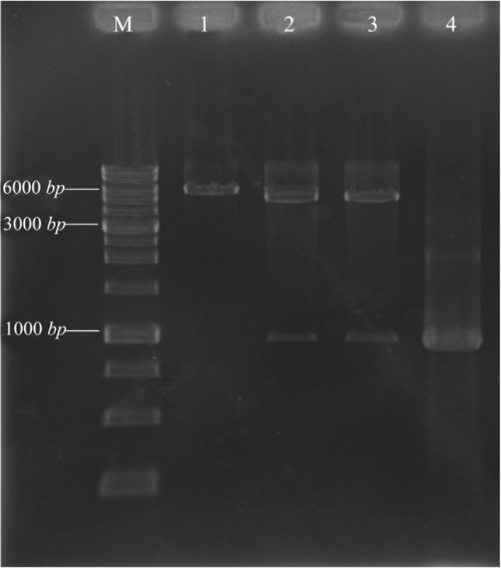 Agarose gel electrophoresis analysis of recombinant pET28a/ pilQ 1138-2118 with restriction enzyme digestion. Lane M; DNA marker (1 kb ), Lane 1; mono-digestion of the pET28a/ pilQ 1138-2118 vector with BamHI. One expected fragment was observed on the gel (∼6350 bp band). Lane 2 and 3; BamHI/HindIII double digested the recombinant vector with BamHI and HindIII buffer, respectively. Two expected fragments from double digestion were observed on the gel (∼5369 and 981 bp bands). Lane 4; the optimized PCR product of the pilQ 1138-2118 gene (∼ 961 bp band).