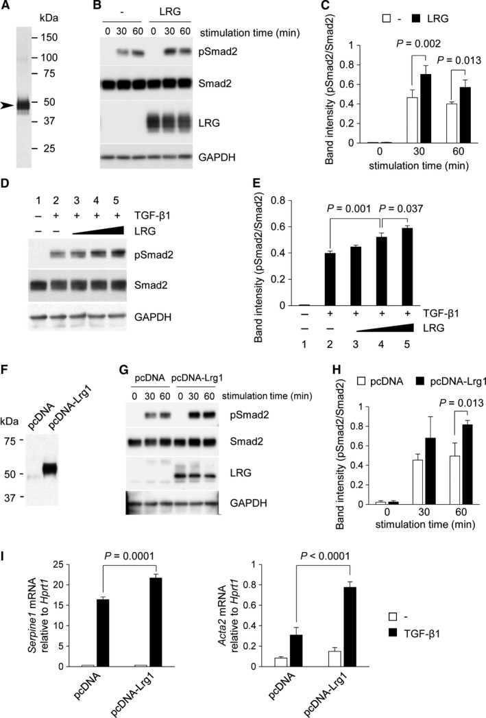 Effect of LRG on TGF ‐ β ‐induced Smad2 phosphorylation and downstream gene expression in L929. (A) Silver staining of affinity‐purified recombinant mouse LRG obtained from the culture supernatant of recombinant mouse LRG ‐expressing A549 cells using an anti‐ LRG antibody‐conjugated column. The sizes of molecular weight markers are indicated on the right lane. The size of the major band (indicated by arrowhead) corresponded to that of LRG (45–50 kD a). (B and C) Detection of phospho‐Smad2 by western blot analysis. L929 cells were treated with or without 20 μ g/ mL of LRG for 24 h. Cells were then stimulated with 2 ng/ mL of TGF ‐ β 1 for 0, 30, and 60 min. Anti‐phospho‐Smad2 (Ser465/467), anti‐Smad2, anti‐ LRG , and anti‐ GAPDH antibodies were used for the detection. Band intensity of pS mad2 normalized to Smad2 is shown in Figure 4 C ( n = 3). (D and E) Detection of phospho‐Smad2 by western blot analysis. L929 cells were treated without (lanes 1 and 2) or with 0.035 μ g/ mL (lane 3), 0.35 μ g/ mL (lane 4), and 3.5 μ g/ mL (lane 5) of LRG for 24 h and then with 2 ng/ mL of TGF ‐ β 1 for 30 min. Band intensity of pS mad2 normalized to Smad2 is shown in Figure 4 E ( n = 3). (F) Detection of LRG in culture supernatants of pc DNA ‐Lrg1 (containing full length LRG cDNA ) but not in those of pc DNA (vector without insertion). Supernatants from L929 cells after 24‐h culture in serum‐starved media were analyzed by western blot. (G and H) Detection of phospho‐Smad2 in pc DNA ‐Lrg1 and pc DNA cells after treatment with 2 ng/ mL of TGF ‐ β 1 for 0, 30, and 60 min. Band intensity of pS mad2 normalized to Smad2 is shown in Figure 4 H ( n = 3). (I) qPCR analysis of Serpine1 and Acta2 . L929 cells were treated with 2 ng/ mL of TGF ‐ β 1 for 6 h for Serpine1 or for 12 h for Acta2 . The relative expressions of Serpine1 and Acta2 , normalized to Hprt1 gene expression are shown.