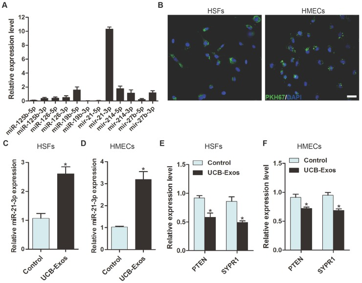 UCB-Exos deliver miR-21-3p into fibroblasts and endothelial cells. (A) Detection of the expression of the indicated miRNAs by qRT-PCR analysis. n = 3. (B) Fluorescence microscopy analysis of PKH67-labeled UCB-Exos internalization by HSFs and HMECs. The green-labeled exosomes were visible in the perinuclear region of recipient cells. Scale bar: 50 μm. (C-D) HSFs and HMECs incubated with UCB-Exos for 3 h showed higher expression levels of miR-21-3p than controls did. n = 3 per group. Incubation with UCB-Exos for 24 h reduced the expression of PTEN and SPRY1 in HSFs (E) and HMECs (F) . n = 3 per group. UCB-Exos were used at a concentration of 100 μg/mL. * P