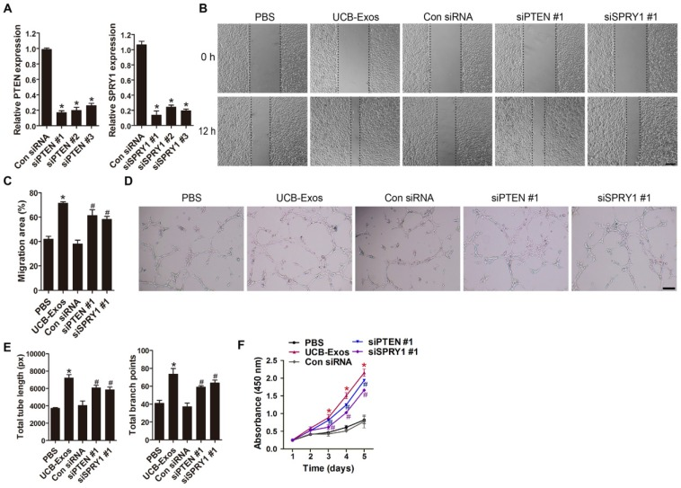 Inhibition of PTEN and SPRY1 induces UCB-Exos-like pro-angiogenic effects on endothelial cells. (A) The inhibitory efficiency of the siRNAs targeting PTEN and SPRY1 was verified by qRT-PCR. n = 3 per group. (B) The migration of HMECs in different treatment groups was tested by the scratch wound assay. (C) Quantitative analysis of the migration rates in (B). n = 3 per group. (D-E) Representative images and quantification of HMECs tube formation in different treatment groups. n = 3 per group. (F) CCK-8 analysis of HMECs proliferation in different treatment groups. n = 4 per group. * P