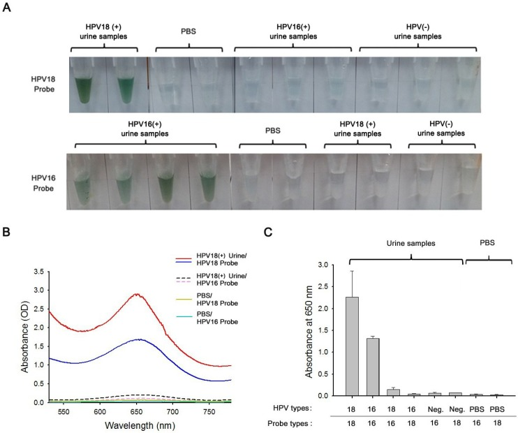 (a) Assessment of clinical performance of the proposed PCR-free colorimetric assay by evaluating urine samples of HPV-positive cervical cancer patients (HPV16(+) and HPV18(+)), HPV-negative healthy controls (HPV(-)), and PBS. The photographs display the color change of nanowire-DNA complexes after hybridization with biotin-labelled capture and detector probes with the corresponding target HPV DNA isolated using the nanowire, followed by the addition of HRP/st-tagged NPs. (b) The UV-Vis spectra of nanowire-DNA complexes that contain cfDNA isolated from HPV18-positive urine by PEI-mPpy NWs. With the addition of HPV16/HPV18 probes and HRP/st-tagged NPs, type-specific HPVs can be specifically detected. (c) Average absorbance values of circulating cfDNA isolated from urine samples of HPV-positive cervical cancer patients (HPV16(+) and HPV18(+)), HPV-negative healthy controls (HPV(-)), and PBS after the reaction with different probe types specific for HPV16 or HPV18. A total of 24 HPV-positive and HPV-negative urine samples were collected and tested. The error bars represent the standard deviations from five independent measurements.