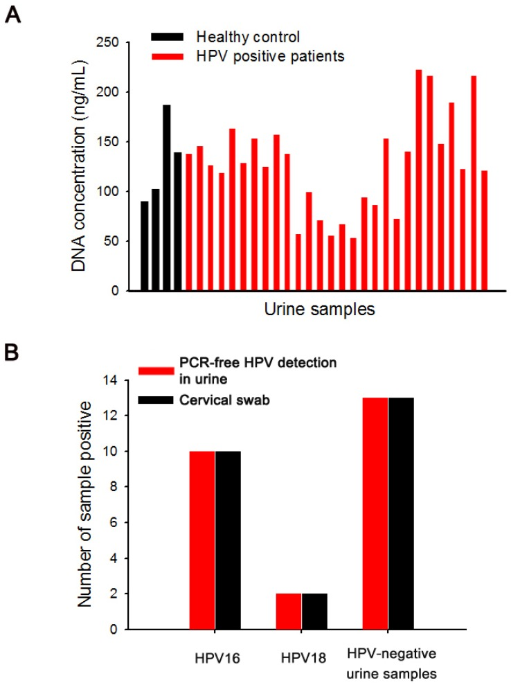 (a) The concentration of cfDNA isolated from urine samples of HPV-negative healthy controls and HPV-positive cervical cancer patients using PEI-mPpy NWs. (b) Type-specific concordance of HPV DNA genotypes of the results from cervical swabs and PCR-free urinary HPV detection by PEI-mPpy NWs.