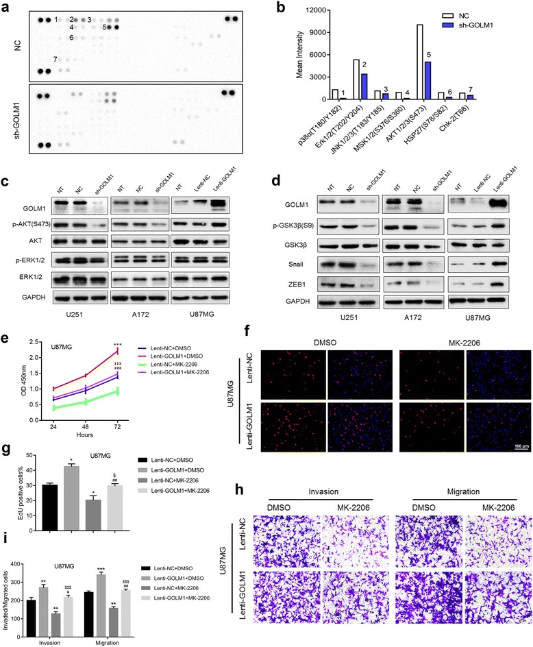 GOLM1 promotes human glioma progression through activation of AKT. a Image of phospho-kinase array performed with lysates prepared from U251-NC and -sh-GOLM1 cells. Spots with significant decreases in phosphorylation are numbered and quantification is shown in ( b ). c Western blot analysis of p-AKT (S473), AKT, p-ERK1/2, ERK1/2 in indicated cells. d Kinases and genes downstream of AKT in U251, A172 and U87MG cells were analyzed by western blot. U87MG-Lenti-NC and -Lenti-GOLM1 cells were treated with the AKT inhibitor MK-2206 (2 μM) or DMSO (vehicle control) and evaluated for e cell viability in the CCK8 assay and f cell proliferation in EdU (red) assays. Scale bar = 100 μm. g Graphic representation of ratios of EdU positive cells. Data are presented as the mean ± SEM. h Transwell migration and invasion assays were performed on U87MG-Lenti-NC and -Lenti-GOLM1cells with indicated treatment. i Quantification of invaded and migrated cells in Transwell assays after incubation for 24 h. Scale bar = 50 μm. (* P