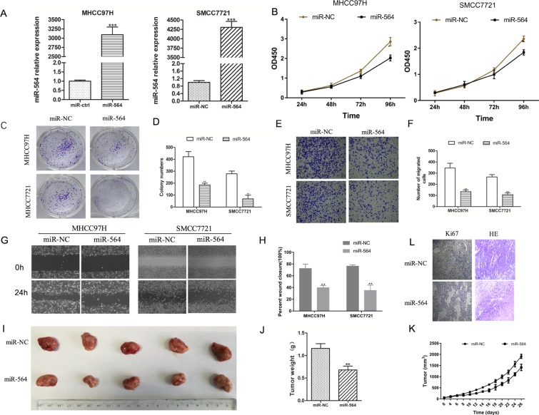 miR-564 inhibits SMCC7721 and MHCC97H cell proliferation, migration and invasion in vitro ( A ) miR-564 expression in the miR-564 group and miR-NC group as measured by qRT-PCR. U6 was used as a loading control. There was a significant increase in the expression level of miR-564 in the miR-564 group ( P