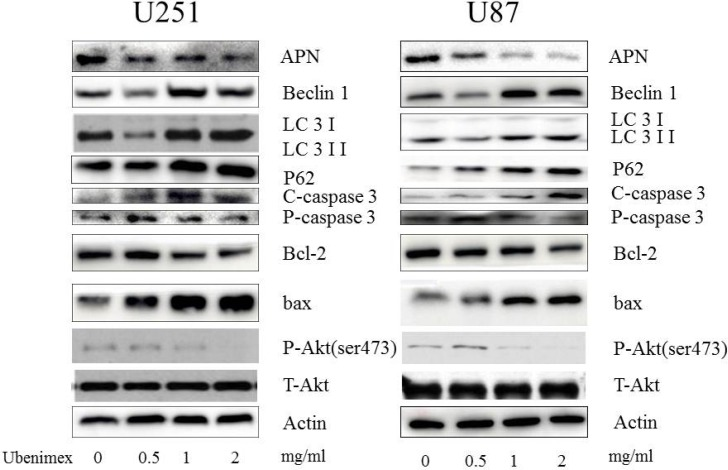 Western blot showed that high dose (1, 2 mg/ml) of ubenimex induced LC-3II/I expression, while low dose (0.5 mg/ml) inhibited it Same trend in Beclin1 expression. These results suggested well connection of ubenimex dose with autophagy, the expression of P62 was gradually decreased with increased dose of ubenimex. Akt pathways and APN were influenced by ubenimex. p-Akt-ser473 was down regulated in a dose-dependent manner. But the total Akt expression showed no difference. Ubenimex, an APN inhibitor, also had an effect on U87 and U251 cells, with a reverse trend for cleaved caspase-3 levels and significantly inhibited the rate of bcl-2/bax.