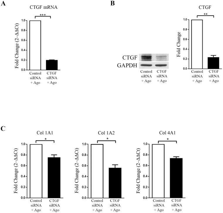 CTGF regulates collagen in HEK293-MAS cells treated with MAS agonist (AR234960). MAS expressing HEK293 cells were transiently transfected with control siRNA and CTGF siRNA followed by treatment with MAS agonist (AR234960). (A) Real-time PCR analysis confirms CTGF down-regulation by CTGF siRNA as compared to control siRNA transfected and followed by MAS agonist treatment. GAPDH was used as loading control. CTGF siRNA is specific and has no off-target effect on MAS expression. (B). Western-blot confirmation of CTGF protein levels. The western blot image shown is a representative of all the experiment done under similar experimental condition and data from multiple experiments quantitated and cumulative data were presented as bar graphs (** p