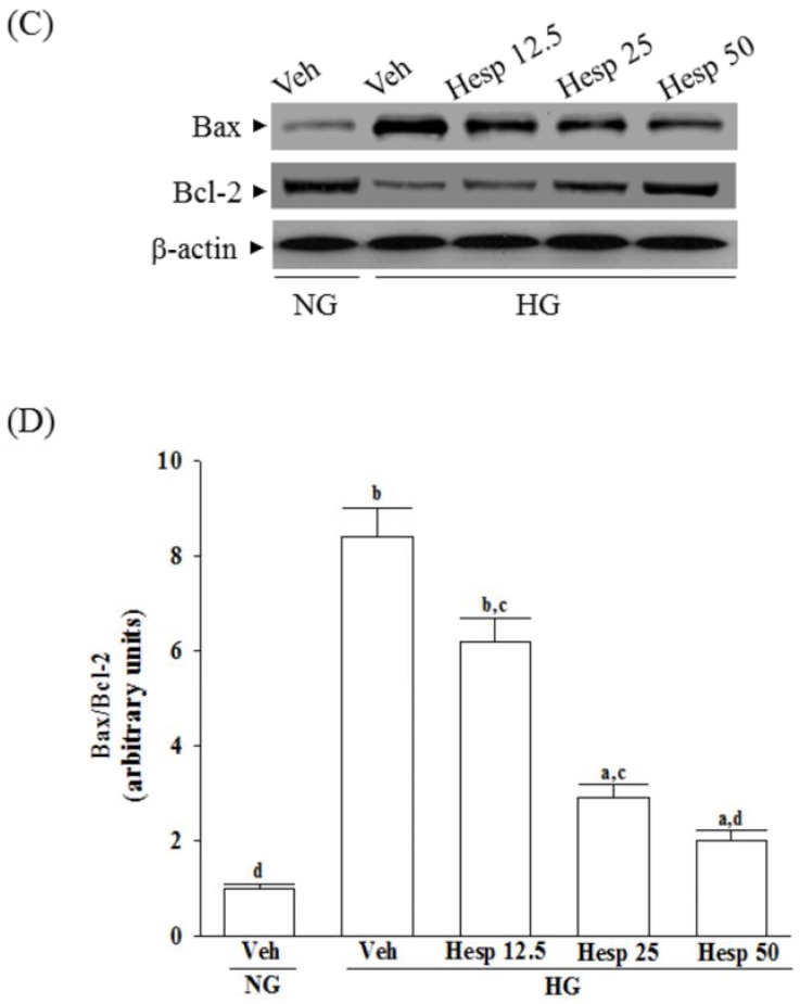Effects of hesperidin on protein expression related to apoptosis in RGC-5 cells under high glucose conditions. The RGCs were cultured with normal (NG) or high glucose (HG) plus hesperidin at concentrations of 12.5 (Hesp 12.5), 25 (Hesp 25), or 50 μmol/L (Hesp 50) for 48 h. ( A ) Protein bands of cleaved caspase-9 and cleaved caspase-3 in RGC-5 cells detected by Western blotting; ( B ) Quantitative densitometric analysis of caspase-9 and cleaved caspase-3; ( C ) Protein bands of Bax and Bcl-2 in RGC-5 cells detected by Western blotting; ( D ) Changes of the ratios of Bax/Bcl-2 are displayed in the bottom panel. The results are presented as the mean ± SD of five independent experiments ( n = 5), each of which was performed in triplicate. a p