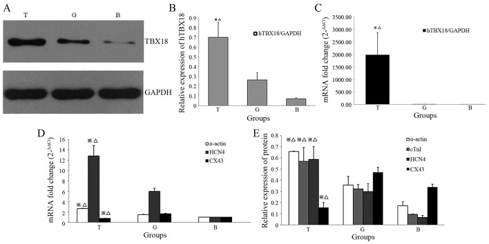 Western blotting and reverse transcription-quantitative polymerase chain reaction analysis of target protein and mRNA expression post-transduction. (A) pHBAd-MCMV-GFP-TBX18-transduced BMSCs displayed exogenous TBX18 expression, as determined by western blotting. (B) Protein expression levels of TBX18 were verified in differentiated cells by western blotting. (C) Alterations in the relative mRNA expression levels of TBX18 were compared between the T group and the G and B groups. (D) Quantitative analysis of the mRNA expression levels of α-actin, HCN4 and CX43. (E) Western blotting detected increased α-actin, cTnI and HCN4 protein expression, and reduced CX43 protein expression, in the T group compared with in the G and B groups. ※ P