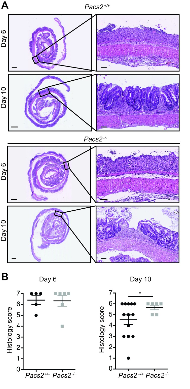 Pacs2 -/- mice show comparable inflammation and tissue damage during DSS-induced colitis Histological sections were scored blindly using the criteria outlined in Table 2 . A. Representative images of colonic specimens from control and Pacs2 -/- mice isolated at day 6 and day 10. Scale bar overview pictures = 1 mm. Scale bar detail figures = 0.1 mm. B. Dot plots show the histology score, calculated as the sum of the epithelial damage score and the inflammation score. The individual scores were calculated as described in Table 2 . All data represent the mean ± S.E.M. and were analyzed by unpaired Student's t-test ( n = 6-13 as indicated). Data were pooled from three independent experiments.