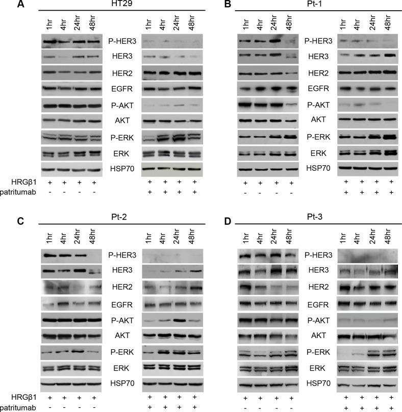 Patritumab administration inhibits the PI3K survival pathway and activates the MAPK proliferation pathway Total cell lysates from HT29 ( A ), Pt-1 ( B ), Pt-2 ( C ), and Pt-3 ( D ) cells, incubated with 10 ng/ml HRG-β1 and 10 μg/ml patritumab antibody for the indicated times, were analyzed by immunoblot to evaluate the expression of total and P-HER3, HER2, EGFR, total and p-AKT, total and p-ERK. The anti-HSP70 antibody was used to validate equivalent amount of loaded proteins in each lane.