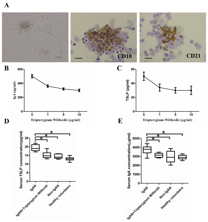 Thymic stromal lymphopoietin (TSLP) enhanced IgA production in follicular dendritic cell (FDC)-associated clusters through TSLP receptor (TSLPR), and serum IgA and TSLP concentrations (A) Left to right in the upper row: morphology, CD10 + GC cells and CD21 + FDCs in FDC-associated clusters isolated from tonsillar GCs of IgAN patients. FDC-associated clusters are composed of CD 10 + GC cells and CD21 + FDCs, with about 1 FDC per 10 lymphocytes in each FDC-associated cluster. (B, C) Left to right in the lower row: IgA and TSLP concentrations in the supernatants of FDC-associated clusters. IgA and TSLP were quantified in the supernatants using ELISA. Combined data (mean ± SD) from experiments using FDC-associated clusters from 3 IgAN patients are presented. (D, E) The IgA and TSLP concentrations in the sera of 20 IgAN patients with Tripterygium Wilfordii treatment, 20 IgAN patients without treatment, 20 non-IgAN patients with chronic tonsillitis patients, and 20 healthy volunteers were measured by ELISA. Error bars show means ± SEMs. * , P