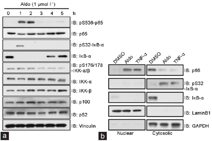 The canonical nuclear factor (NF)-kappa B pathway is activated after aldosterone (Aldo) treatment. ( a ) Protein markers of NF-κB activation were detected by immunoblot analysis of freshly isolated penile corpus cavernosum tissues. ( b ) In the nuclear fraction of isolated penile corpus cavernosum tissues, p65 protein was increased in the experimental groups compared with dimethylsulfoxide vehicle control. In the cytosolic fraction, phosphorylation of inhibitor of NF-κB alpha (IκB-α) displayed a sharp increase and subsequently declined after aldosterone or tumor necrosis factor-alpha (TNF-α, 20 ng ml −1 ) treatment. DMSO: dimethylsulfoxide; GAPDH: glyceraldehyde-3-phosphate dehydrogenase.