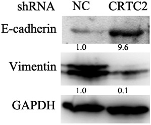 CRTC2 knockdown suppresses epithelial‐mesenchymal transition of A549. The indicated proteins were detected by Western blot. Glyceraldehyde 3‐phosphate dehydrogenase (GAPDH) was detected as an input control. NC, negative control; shRNA, small hairpin RNA.