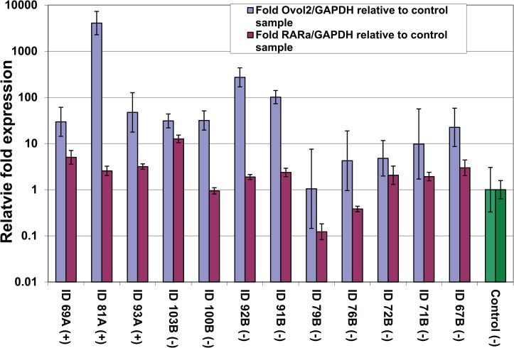Correlation between relative levels of Onchocerca volvulus genome and RAR-α relative expression levels. <t>GAPDH</t> indicates glyceraldehyde 3-phosphate dehydrogenase; RAR-α, retinoic acid receptor-α. (+) or (−) tags after sample IDs designate their association with positive and negative sample groups, respectively. Ovol2 and RAR relative levels for the control sample have been adjusted to 1 and are highlighted in green.