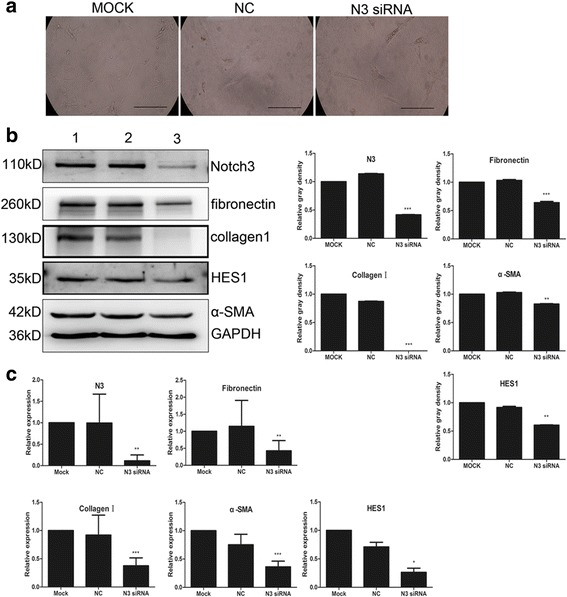 Effect of siRNA-mediated Notch3 inhibition on mouse PaSC activation. a Transfection of Notch 3 siRNA in mouse PaSCs activation after 48 h, the morphological changes in PaSCs. b Representative western blotting images showing the effect of siRNA-mediated Notch3 inhibition on PaSC activation markers, such as α-SMA, fibronectin and collagen I, and on the Notch target gene HES1; densitometry analyses of the blots are also shown. c RT-qPCR results showing the effect of siRNA-mediated Notch3 inhibition on PaSC activation markers, such as α-SMA, fibronectin and collagen I, and on the Notch target gene HES1 at the transcriptional level. Scale bars: 100 μm in ( a ). The data are presented as the mean ± SD, *P