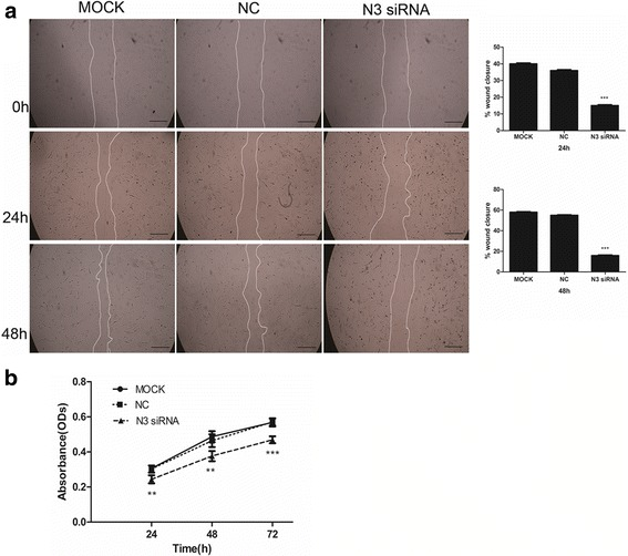Effect of Notch3 siRNA on migration and proliferation of mouse PaSCs. a Representative microscopic images showing the effect of Notch3 siRNA on the migration of mouse PaSCs; the semi-quantitative image analysis is also presented ( n = 4). b Cell growth curve showing that transfection of mouse PaSCs with Notch3 siRNA significantly reduced PaSC proliferation compared to negative control siRNA. Scale bars: 100 μm in ( a ). The data are presented as the mean ± SD, **P