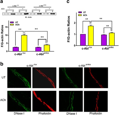 c-Abl knockout inhibits actin filament polymerization in response to ACh stimulation.  a  Mouse tracheal rings from c-Abl -lox  and c-Abl smko  mice were treated with acetylcholine (ACh) (100 μM, 5 min) or left untreated (UT). F/G-actin ratios were evaluated using the fractionation assay. Data are mean ± SE ( n  = 5).  b  Representative images illustrating the effects of c-Abl knockout on F/G-actin ratios. Sections of trachealis from c-Abl -lox  and c-Abl smko  mice were stained with DNase I (for G-actin) or phalloidin (for F-actin).  c  ACh-induced increases in F/G-actin ratios evaluated by fluorescent microscopy are reduced in c-Abl smko  mice ( n  = 4). * P
