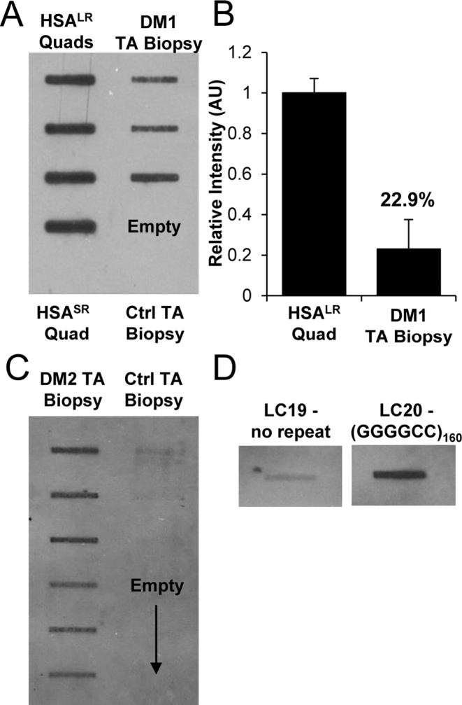 cDNA slot blot of DM1 and DM2 muscle biopsy samples and (GGGGCC) 160 -expressing cells. ( A ) cDNA slot blot of total cellular RNA (2 μg) from tibialis anterior (TA) biopsy samples of DM1 patients ( n = 3) or healthy controls, as compared to quadriceps muscle from HSA LR transgenic mice. The bottom-most wells in each column are HSA SR or healthy controls. ( B ) Relative quantification of (A), with the mean value from HSA LR mice set to 1. ( C ) cDNA slot blot of 2 μg total cellular RNA from TA biopsy samples from DM2 patients ( n = 6) or healthy controls ( n = 3, upper-most wells). Reverse transcription was primed with (CAGG) 4+2 RNA/DNA hybrid primer, as shown in table 1 . ( D ) Representative ER-cDNA slot blot of 2 μg total RNA from pLC19 (no repeat) versus pLC21 [expressing (GGGGCC) 160 ] cell lysates. Blots were run simultaneously, with an intervening slot removed for presentation.