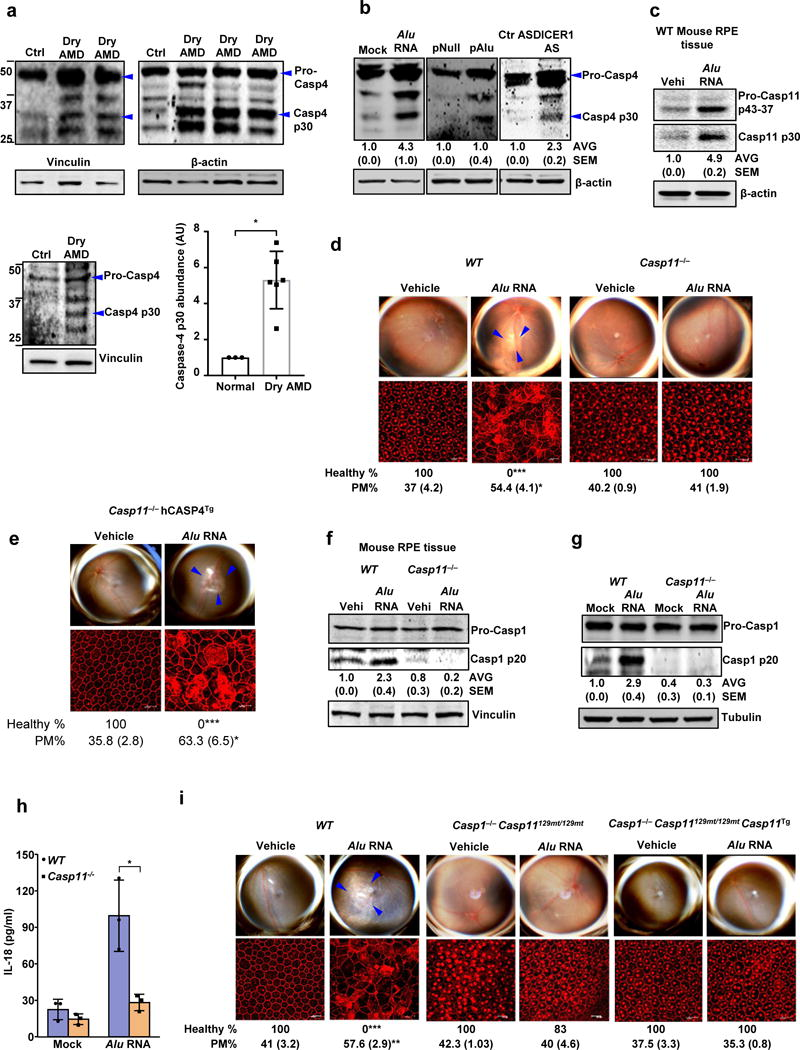 Caspase-4/11 in geographic atrophy and RPE degeneration ( a ) Left and top quadrants, immunoblots for pro-caspase-4 (pro-Casp4) and the p30 cleavage product of caspase-4 (Casp4 p30) in the RPE of human eyes with geographic atrophy (dry AMD) as compared to unaffected controls (Ctr). Specific bands of interest are indicated by arrowheads. Lower right quadrant, densitometry of the bands corresponding to caspase-4 p30 normalized to loading control. The molecular weight markers are indicated on the left side of the blot (Data are presented as mean ± SD; n = 3 control eyes; n = 6 dry AMD eyes; *P = 0.002, two-tailed t test). ( b ) Immunoblots for pro-Casp4 and Casp4 p30 in human RPE cells mock transfected (just transfection mixture) or transfected with Alu RNA; Alu expression plasmid (pAlu) or empty vector (pNull); or DICER1 or control (Ctr) anti-sense oligonucleotides (AS). Specific bands of interest are indicated by arrowheads. ( c ) Immunoblot for pro-caspase-11 (Pro-Casp11) and the p30 cleavage product of caspase-11 (Casp11 p30) in RPE tissue of WT mice injected subretinally with Alu RNA or vehicle (Vehi). n = 3 mice per group. (d,e) Top, fundus photographs of the retinas of WT (n = 8 eyes) and Casp11 −/− (n = 10 eyes) mice, ( d ) and Casp11 −/− (n = 8 eyes) mice expressing a human caspase-4 transgene ( Casp11 −/− hCasp4 Tg ) ( e ) injected with vehicle or Alu RNA. The degenerated retinal area is outlined by blue arrowheads. Bottom, immunostaining with zonula occludens-1 (ZO-1) antibody to visualize RPE cellular boundaries; loss of regular hexagonal cellular boundaries is indicative of degenerated RPE. ( f ) Immunoblots of pro-caspase-1 (pro-Casp1) and the p20 cleavage product of caspase-1 (Casp1 p20) in RPE tissue of WT and Casp11 −/− mice injected subretinally with vehicle (Vehi) or Alu RNA. n = 3 mice per group. ( g ) Immunoblots of pro-caspase-1 and the p20 cleavage product of caspase-1 in WT and Casp11 −/− mouse RPE cells treated with Alu RNA. ( h ) IL-18 secreti