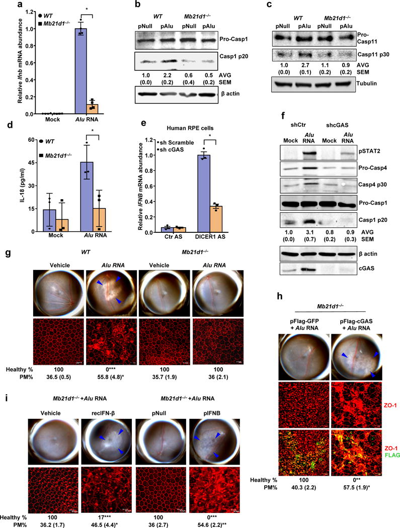 cGAS driven signaling licenses non-canonical inflammasome and RPE degeneration ( a ) Relative abundance of Ifnb mRNA in WT and Mb21d1 −/− mouse RPE cells mock-transfected or transfected with Alu RNA. Data presented are mean ± SEM ; n = 4 cell culture replicates; * P = 0.0001, two-tailed t test. ( b ) Immunoblots of pro-caspase-1 (pro-Casp1) and the p20 cleavage product of caspase-1 (Casp1 p20) in WT and Mb21d1 −/− mouse RPE cells transfected with Alu expression plasmid (pAlu) or empty vector control (pNull). ( c ) Immunoblots of pro-caspase-11 (pro-Casp1) and the p30 cleavage product of caspase-1 (Casp11 p30) in WT and Mb21d1 −/− mouse RPE cells transfected with Alu expression plasmid (pAlu) or empty vector control (pNull). ( d ) IL-18 secretion by WT and Mb21d1 −/− mouse RPE cells mock transfected or transfected with Alu RNA. Data presented are mean ± SD ; n = 3 independent experiments; * P = 0.032, two-tailed t test. ( e ) Relative abundance of IFNB mRNA in control (sh Scramble) or cGAS shRNA knockdown human RPE cells transfected with or DICER1 or control (Ctr) anti-sense oligonucleotides (AS). Data presented are mean ± SEM ; n = 3 cell culture replicates; * P = 0.0002, two-tailed t test. ( f ) Immunoblot of phosphorylated STAT2 (pSTAT2); pro-caspase-4 and casp4 p30; pro-caspase-1 and p20 cleavage casp1 p20 in control (sh Scramble) or cGAS shRNA knockdown human RPE cells mock-transfected or transfected with Alu RNA. Knockdown efficiency of cGAS is shown by cGAS immunoblot and tubulin was used as a loading control. ( g ) Fundus photographs and immunofluorescence staining of zonula occludens-1 (ZO-1) on RPE flat mounts of WT (n = 6 eyes) and Mb21d1 −/− (n = 8 eyes) mice subretinally injected with vehicle or Alu RNA. ( h ) Fundus photographs and immunofluorescence staining of zonula occludens-1 (ZO-1) on RPE flat mounts of Mb21d1 −/− (n = 7 eyes) mice reconstituted by in vivo transfection of cGAS expression plasmid (pFlag-cGAS) or control GFP expression plasmid (pFla