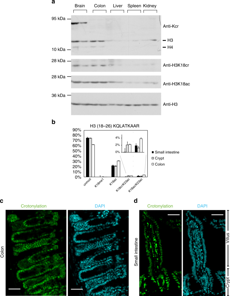 Histone crotonylation is found in the intestine. a Western blot analysis of whole cell extracts from several mouse tissues using indicated antibodies shows that histone crotonylation is particularly abundant in the brain and colon; the analysis of tissues from two mice is shown. b Relative abundance of H3K18cr in the intestinal epithelium cell fractions, n = 3, error bars are standard deviation. c , d Immunofluorescence microscopy with anti-pan crotonyl antibody (green, left panels) and DAPI counterstaining (cyan, right panels) of a mouse colon ( c ) and small intestinal ( d ) tissue sections, scale bars 40 μm