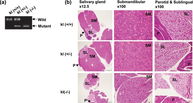 Histological features of the salivary gland in klotho−/− mice. (a) <t>PCR</t> <t>genotyping</t> of klotho‐deficient mice. Genomic DNA from mouse tails was used to amplify the fragments derived from the wild‐type and mutant alleles using two specific primers. (b) Staining with hematoxylin and eosin (×12.5 and ×100 magnification). Photomicrographs of the salivary glands in klotho wild‐type (kl+/+), hetero (kl±), and klotho‐deficient mice (kl−/−). SM, submandibular gland; SL, sublingual gland; P, parotid gland