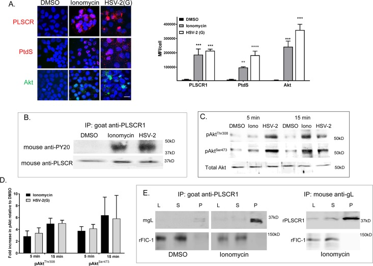 Ionomycin activates phospholipid scramblase leading to externalization of phosphatidylserines and Akt. (A). CaSki cells were treated with ionomycin (1μM), HSV-2(G) (MOI 5 pfu/cell) or DMSO (0.1%) for 15 minutes and then fixed and stained with antibodies to PLSCR1(polyclonal rabbit and Alexa 555, red), PtdS (monoclonal antibody and Alexa555, red), or Akt (polyclonal rabbit and secondary Alexa488, green) as indicated. Nuclei were stained blue with DAPI. Images are representative of results obtained from 2–3 independent experiments; bar = 10μm. Five fields were scanned and mean fluorescence intensity (MFI) per cell calculated using ImageJ software (NIH); results are mean +SEM and the asterisks indicate significant differences by ANOVA compared to DMSO control treated cells. (B). CaSki cells were treated as in A for 15 minutes and then cell lysates were harvested, incubated with a goat anti-PLSCR1 antibody and immune complexes precipitated with protein G-agarose and analyzed by Western blotting with a mouse anti-phosphotyrosine mAb (PY20) or mouse anti-PLSCR1 Ab. The blot is representative of results obtained in 2 independent experiments. (C). CaSki cells were harvested 5 or 15 minutes after exposure to DMSO, 1μM ionomycin (Iono) or HSV-2(G) (5 pfu/cell). Cell surface proteins were biotinylated and precipitated with streptavidin magnetic beads and the pellet analyzed by immunoblotting with rabbit anti-pAktThr 308 or mouse anti-pAktS 473 Abs. In parallel, cellular lysates were analyzed by immunoblotting for total cellular Akt (rabbit polyclonal Ab). Blots representative of 2 independent experiments are shown. (D). The blots were scanned and fold increase in pAktThr 308 and anti-pAktS 473 relative to DMSO treated cells is depicted (mean+ SEM). (E). HaCAT cells were treated with 1μM ionomycin or DMSO (0.1%) for 10 minutes and then incubated with soluble gL for 30 minutes at 37°C, transferred to ice, and immunoprecipitated (IP) with goat anti-PLSCR1 (left) or with mouse-ant