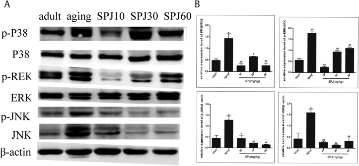 Effects of SPJ on the expression of the MAPK signaling pathway in the colon of aging rats. (A) Expression of the MAPK signaling pathway in the colon of rats by Western blot. (B) Quantification of p-ERK/ERK, p-P38/P38, p-JNK/β-actin, and JNK/β-actin ratios. Data are expressed as mean ± SEM ( n = 6). * p