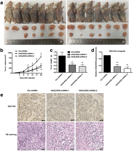 HAGLROS promotes GC cell tumorigenesis in vivo. a BGC-823 cells transfected with Ctrl shRNA and HAGLROS shRNA were injected respectively into nude mice ( n = 7), which were killed by carbon dioxide euthanasia 20 days after injection. b Tumor volumes were calculated every 3 days beginning 5 days after injection. Bars indicate SD. c Tumor weights were represented as the means of tumor weights ± SD. d Transfection efficiency was tested by qRT-PCR. e The tumor sections underwent IHC staining using antibodies against Ki-67 and HE staining. Error bars indicate means ± S.E.M. * P