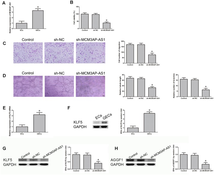 MCM3AP-AS1 expression in glioma-associated endothelial cells (GECs) and inhibition of MCM3AP-AS1 knockdown on glioblastoma (GBM) angiogenesis, KLF5, and AGGF1 expression. (A) Relative MCM3AP-AS1 expression in ECs and GECs by quantitative real-time PCR. Data are presented as mean ± SD. ( n = 5, each group), ∗ P