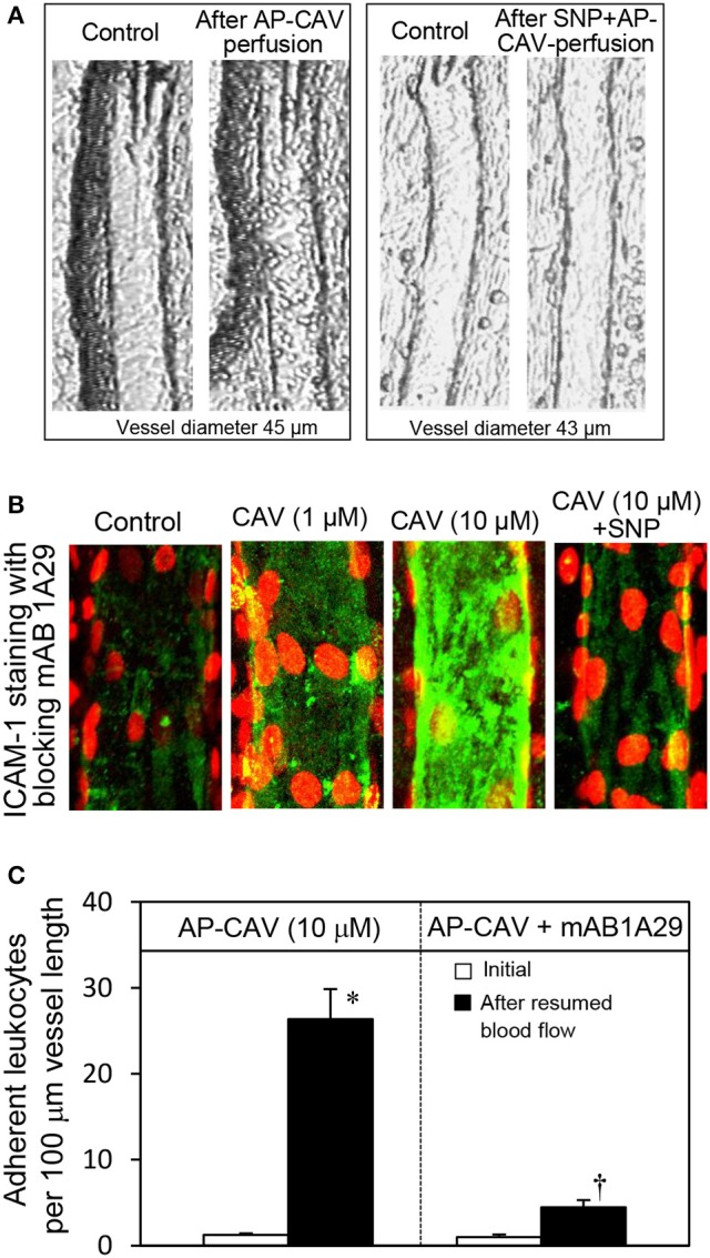 Perfusion of rat mesenteric venules with AP-CAV induced basal NO-dependent ICAM-1 mediated leukocyte adhesion. Intact venules were perfused by AP-CAV for 30 min followed by resuming blood flow in the same vessel for 10 min. Leukocyte adhesion was quantified when each vessel was recannulated with BSA-Ringer solution (Xu et al., 2013 ). (A) Video images of a perfused venule under control conditions and after AP-CAV (10 μM)-induced leukocyte adhesion, and the administration of a NO donor, sodium nitroprusside (SNP), in both perfusate (10 μM) and superfusate (20 μM) abolished AP-CAV-induced leukocyte adhesion. (B) AP-CAV induced dose-dependent increases in EC ICAM-1 binding to its blocking antibody mAb1A29. Confocal images of mAb1A29 (green) and vascular cell nuclei (red) immunofluorescence co-staining under control conditions, after AP-CAV perfusion, and after adding SNP to AP-CAV perfused vessels. (C) Perfusion of vessels with ICAM-1 inhibitory antibody, mAb1A29, significantly attenuated AP-CAV induced leukocyte adhesion ( n = 5 per group). * and † indicate a significant increase and decrease from the control, respectively (modified from Xu et al., 2013 and used by original authors).
