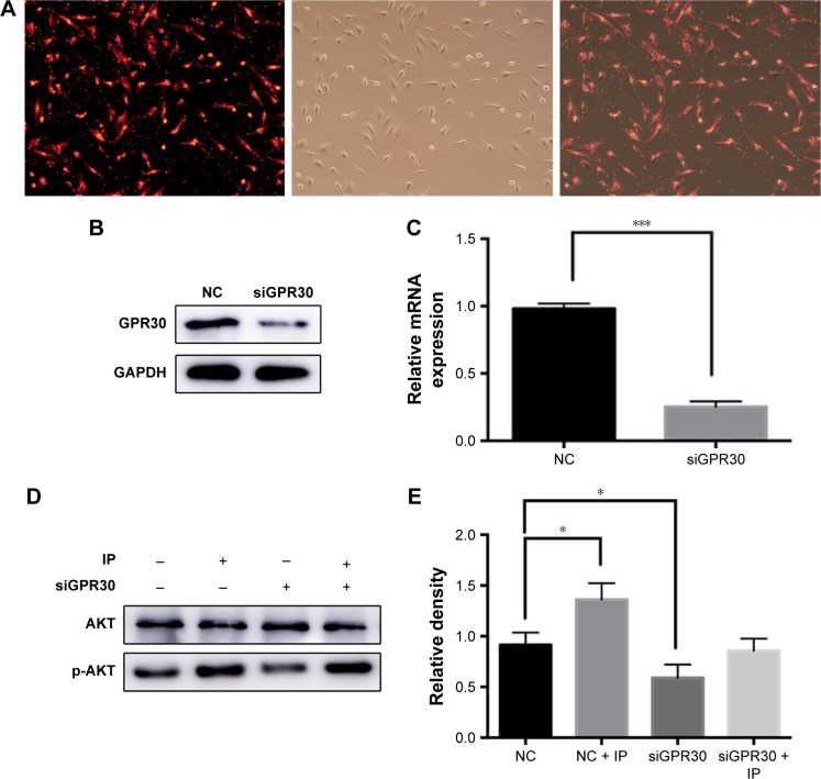 <t>GPR30</t> knockdown eliminated IP-induced PI3K/AKT pathway activation of hPDLCs. The <t>siRNA</t> <t>transfection</t> efficiency of hPDLCs was tested by using the positive control with fluorescence. ( A ) Western blot ( B ) and PCR ( C ) results of GPR30 knockdown of hPDLCs. The expression of AKT and p-AKT was assessed by Western blot. ( D ) Quantitative analysis of Western blot band from ( D ) was performed. ( E ) * P