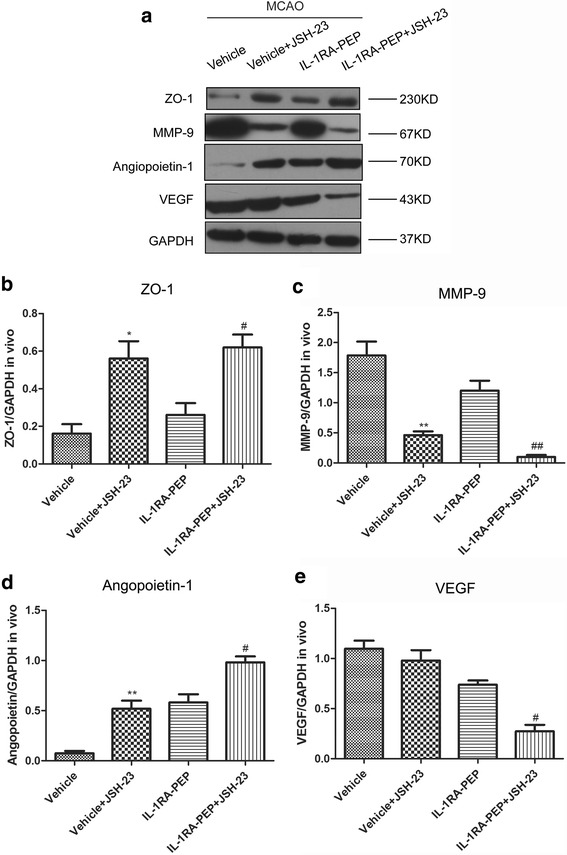 Role of p65/NF-κB pathways in IL-1RA-PEP-mediated effects on blood-brain barrier (BBB) disruption. a After the JSH-23 inhibitor was administered, expression levels of ZO-1, MMP-9, angiopoietin-1, and VEGF were analyzed by western blot in the different groups. b–e The gray value of the band was scanned by optical densitometry, and the ratio value was statistically analyzed. Data are shown as mean ± SEM; * P